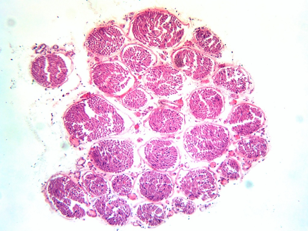 Микромед 3М_9МП_10х_нерв-(поперечный-срез)_2.jpg